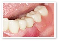 コーヌスデンチャー施術後(奥歯2本が義歯です)